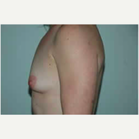 Breast Augmentation before 3058275