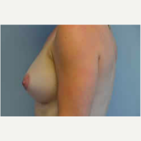 Breast Augmentation after 3058275