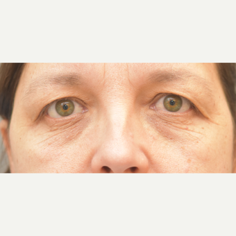 54 year old woman treated with Eye Bags Treatment