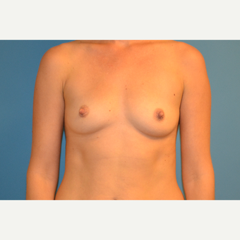 35 year old woman treated with Breast Implants before 3123255