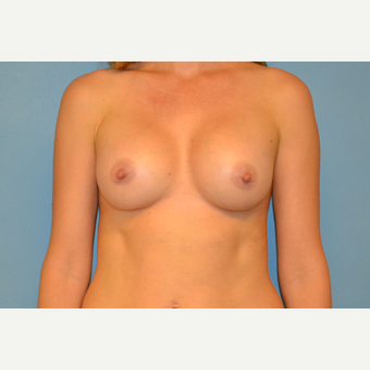 35 year old woman treated with Breast Implants after 3123255