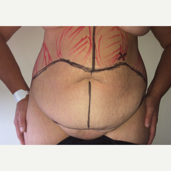 45-54 year old woman treated with Tummy Tuck before 3713663