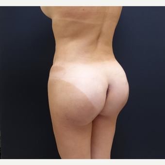 35-44 year old woman treated with Butt Augmentation after 3234489