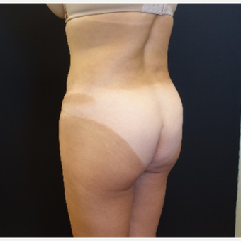35-44 year old woman treated with Butt Augmentation before 3234489