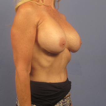 55-64 year old woman treated with Breast Augmentation after 2994832