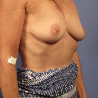 55-64 year old woman treated with Breast Augmentation before 2994832
