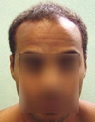 Head and Body Hair FUE- SFET for African American Patient before 195675