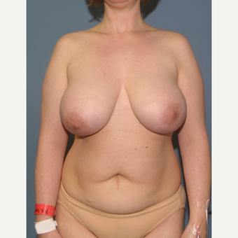 35-44 year old woman treated with Breast Reduction before 3475197