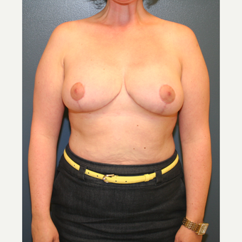 35-44 year old woman treated with Breast Reduction after 3475197