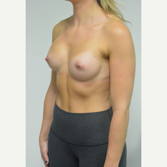 25-34 year old woman treated with Breast Implants who wants a natural look after 3644563