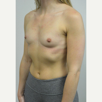 25-34 year old woman treated with Breast Implants who wants a natural look before 3644563