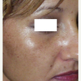 35-44 year old woman treated with Photofacial before 3447452