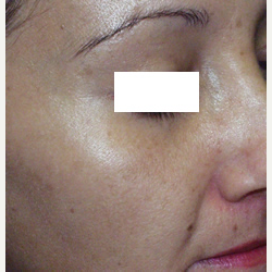 35-44 year old woman treated with Photofacial after 3447452