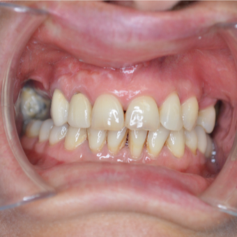 45-54 year old woman treated with Dental Crown
