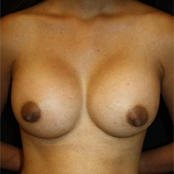 35-44 year old woman treated with Breast Augmentation after 1758141