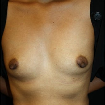 35-44 year old woman treated with Breast Augmentation before 1758141