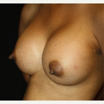 35-44 year old woman treated with Breast Augmentation 1758141
