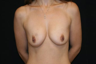 Breast Augmentation with Nipple-Areolar Complex Lift before 156245