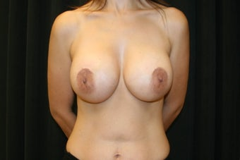 Breast Augmentation with Nipple-Areolar Complex Lift after 156245