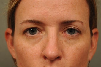 41 Year Old Female with Under Eye Shadows before 975039