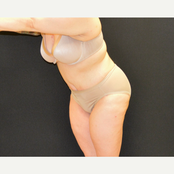 "This 33 year old is 5'2"" and 150 pounds.  She underwent Dr. Campanile's patented CLASS Tummy Tuck after 3774893"