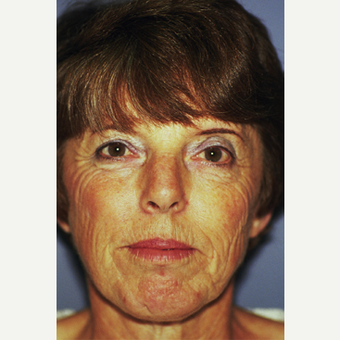 45-54 year old woman treated with Facelift before 3749121