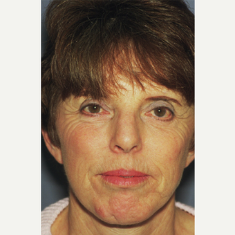 45-54 year old woman treated with Facelift after 3749121