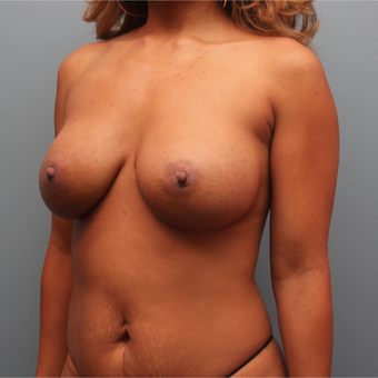 36 year old woman had breast augmentation revision using Inspira Breast Implants after 3389257