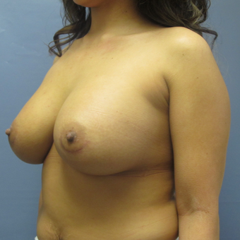 36 year old woman had breast augmentation revision using Inspira Breast Implants before 3389257