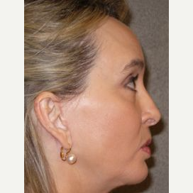 55-64 year old woman treated with Chin Implant after 3097537