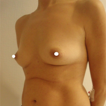 25-34 year old woman treated with Breast Augmentation before 3575016