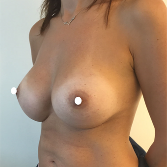 25-34 year old woman treated with Breast Augmentation after 3575016