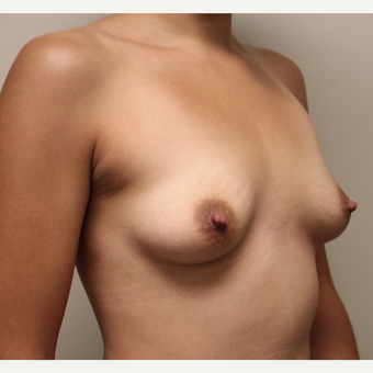 22 year old woman treated with Breast Augmentation before 3482948