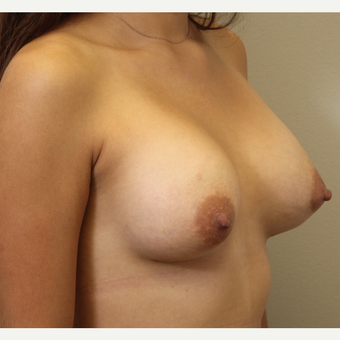 22 year old woman treated with Breast Augmentation after 3482948