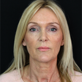 45-54 year old woman treated with Lower Face Lift before 2877971