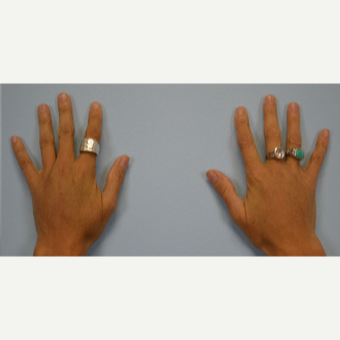 Hand Rejuvenation - Fat Transfer to Hands after 3465765