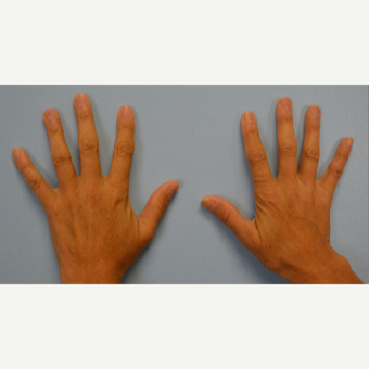 Hand Rejuvenation - Fat Transfer to Hands before 3465765