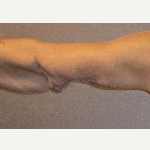 45-54 year old woman treated with Arm Lift before 3092896