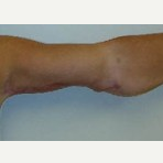 45-54 year old woman treated with Arm Lift after 3092896