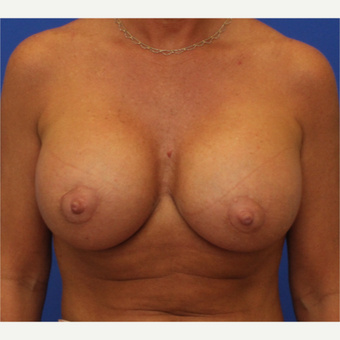 44- year old woman treated with Breast Augmentation after 3345738
