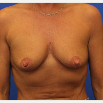 44- year old woman treated with Breast Augmentation before 3345738