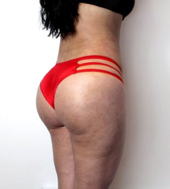 25-34 year old woman treated with Brazilian Butt Lift after 3446787