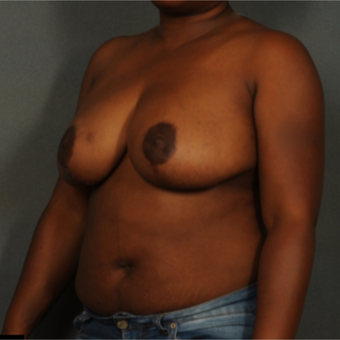 35-44 year old woman treated with Breast Reduction after 3141293