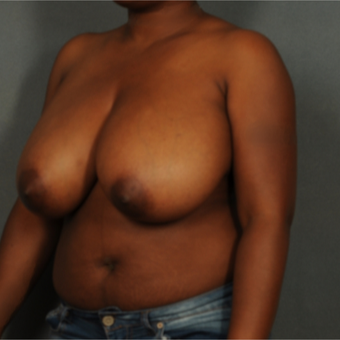 35-44 year old woman treated with Breast Reduction before 3141293