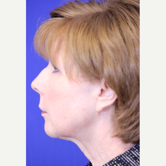 59 year old woman treated with Lower Face and Neck Lift before 3419648