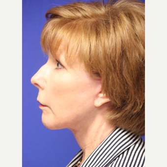 59 year old woman treated with Lower Face and Neck Lift after 3419648