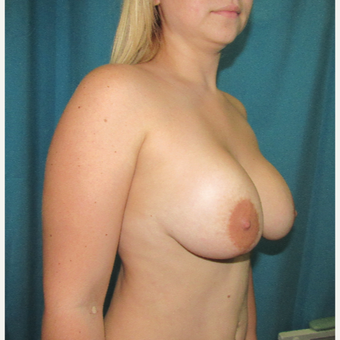 25-34 year old woman treated with Breast Lift with Implants before 3804209
