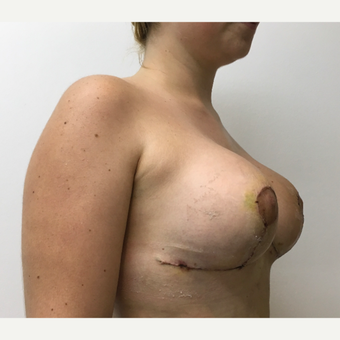 25-34 year old woman treated with Breast Lift with Implants after 3804209