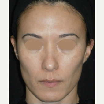35-44 year old woman treated with Laser Treatment after 3128202