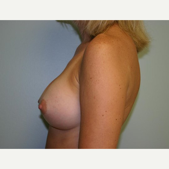Breast Augmentation after 3560733